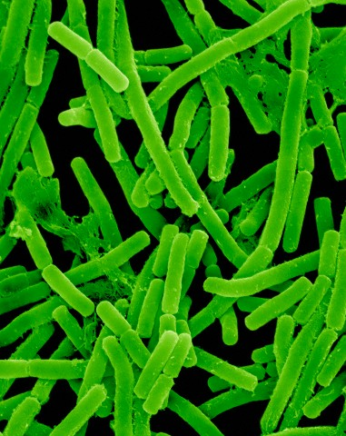 Proprionibacterium Acnes Bacteria Which Cause Acne